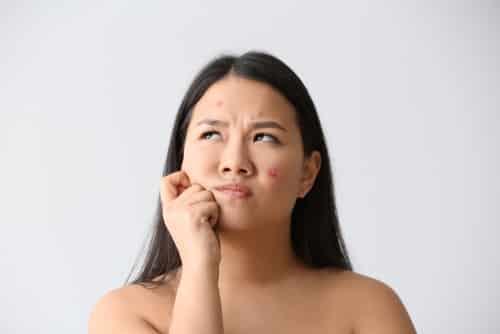 Skincare Menghilangkan Bekas Jerawat